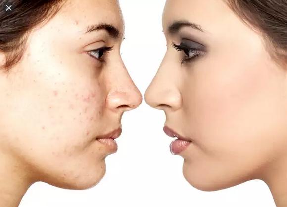 Traitement des imperfections du visage